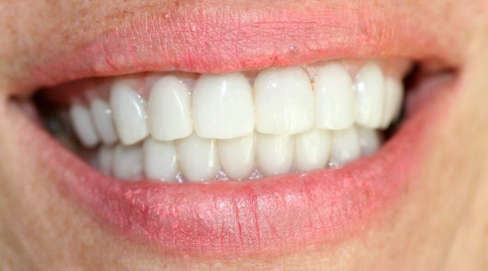 Carillas dentales, Clinica Dr. Fuset