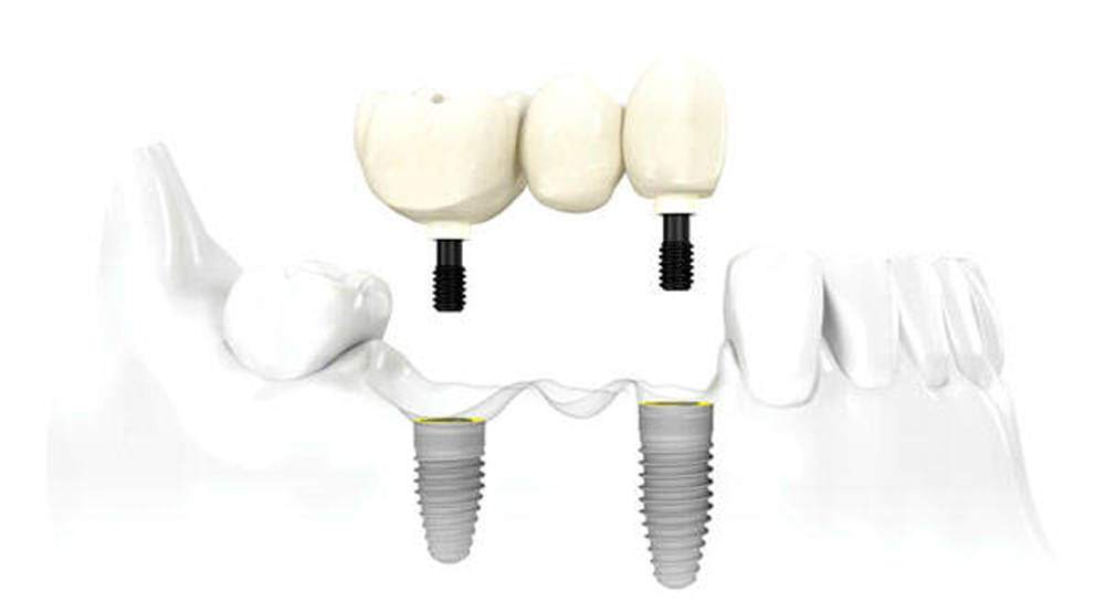 Implantes dentales en Clinica Dr. Fuset