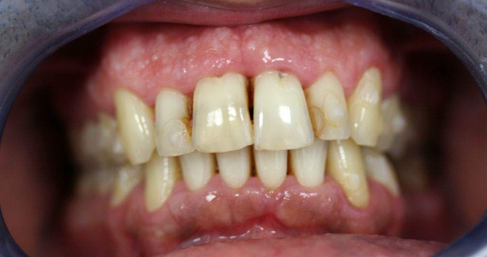 Periodontitis y retraccion de encías