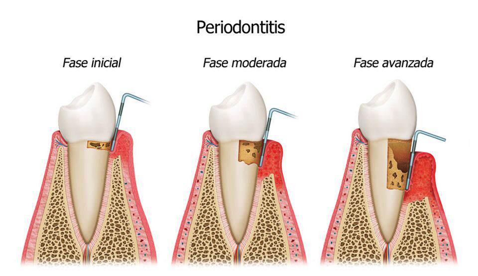 Fases de la Periodontitis