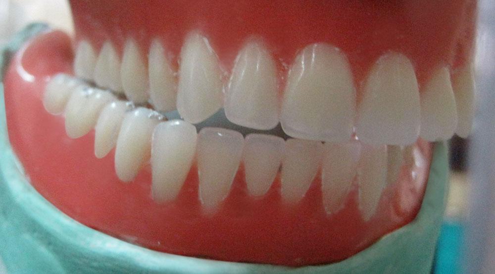 Prótesis dental extraible